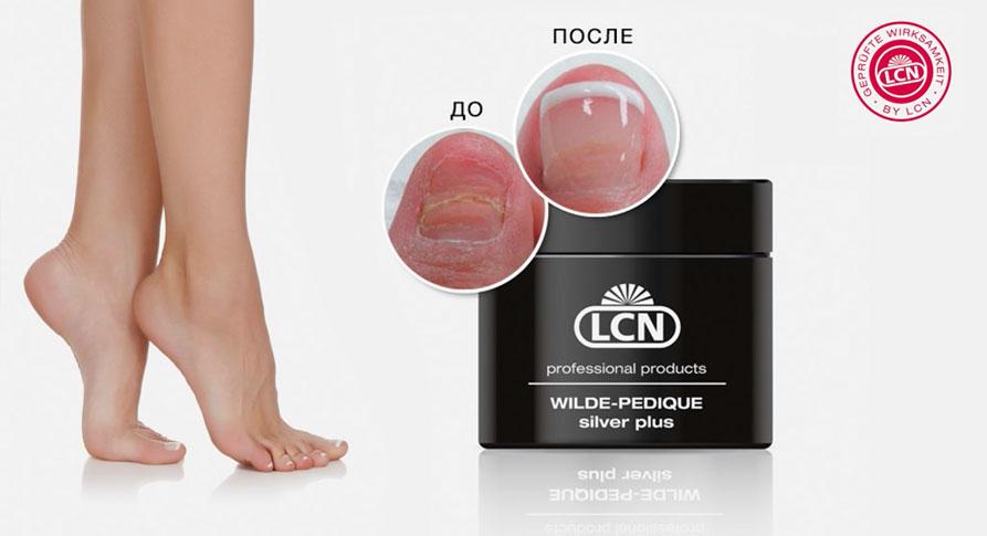 Протезирование ногтей на ногах