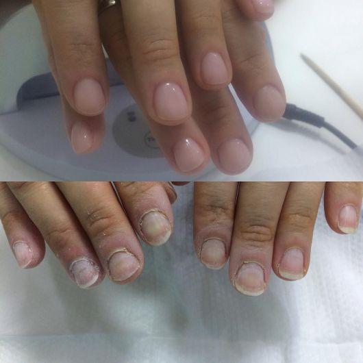 Биоактивный укрепляющий гель для чувствительных ногтей, 100% гипоаллергенный