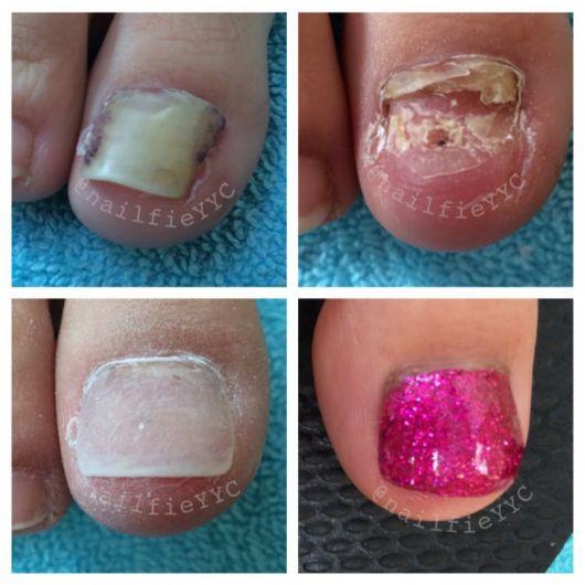 Гель для протезирования ногтей с антимикозными компонентами