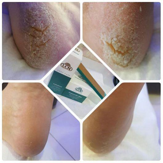 Бальзам для очень сухой и грубой кожи ног