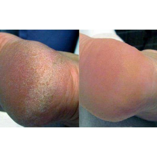 Соль для ножных ванн с 15% мочевины и маслом апельсина