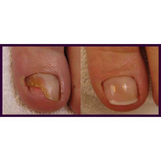 Финиш-гель для протезирования ногтей